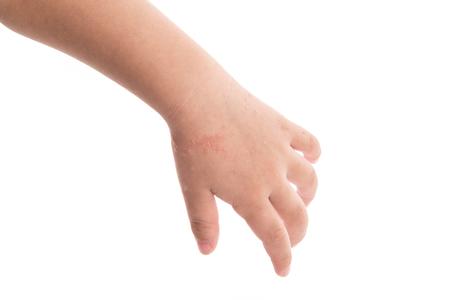 Foto für Eczema on baby's hand. Isolated white background - Lizenzfreies Bild