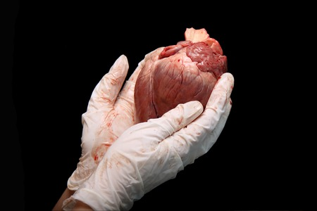 Photo pour abstract organ transplantation. A human heart in woman's hand. Saving lives hopelessly sick. Complex surgical operations. International crime. Assassins in white coats. isolated on black background. - image libre de droit