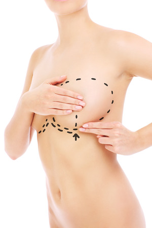 Photo pour Woman and preparations for breast surgery over white background - image libre de droit