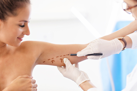 Foto de Plastic surgeon making marks on patients body - Imagen libre de derechos