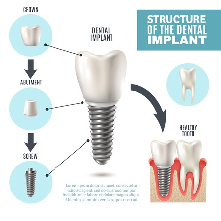 Foto per Dental implant structure medical pictorial educative infographic poster with molar replacement end healthy tools models vector illustration - Immagine Royalty Free
