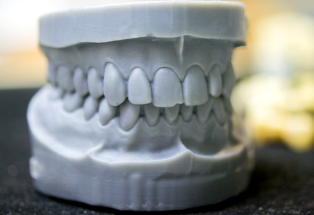 Foto de Upper and lower jaw of a man printed on a 3d printer of photopolymer. Stereolithography 3D printer, technology of liquid photopolymerization under UV light. Modern medical technologies - Imagen libre de derechos