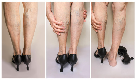 Foto de Painful varicose and spider veins on female legs.Woman in heels massaging tired legs - Imagen libre de derechos