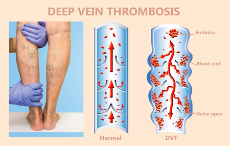 Photo pour Deep Vein Thrombosis or Blood Clots. Embolus. Structure of normal and varicose female veins - image libre de droit