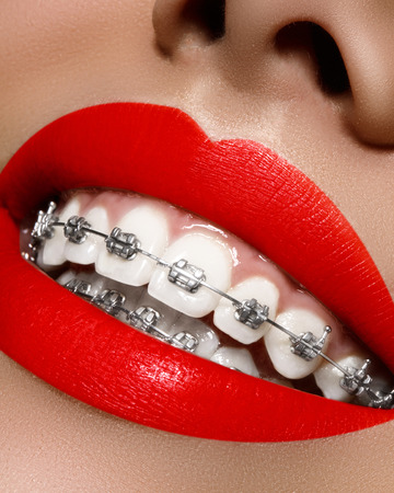 Photo pour Beautiful macro shot of white teeth with braces. Dental care photo. Beauty woman smile with ortodontic accessories. Orthodontics treatment. Closeup of healthy female mouth - image libre de droit