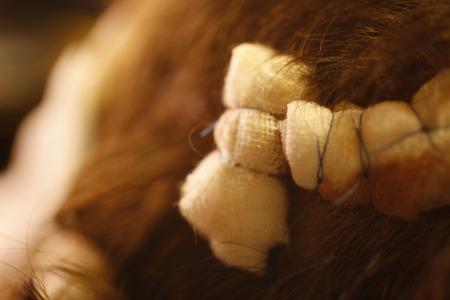 Bandage on human brain concussion wound head