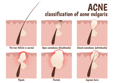 Illustration pour structure of the hair follicle, problem skin with pustules, acne, open blackheads and closed comedones whiteheads - image libre de droit