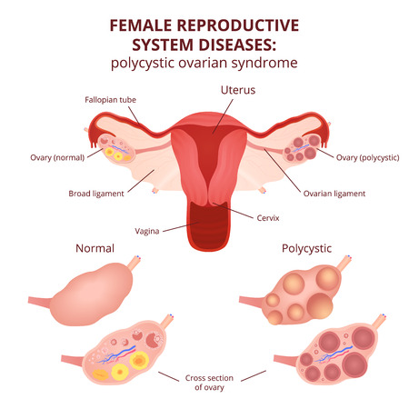 Illustration pour female reproductive system, the uterus and ovaries scheme, polycystic ovary syndrome, ovarian cyst - image libre de droit