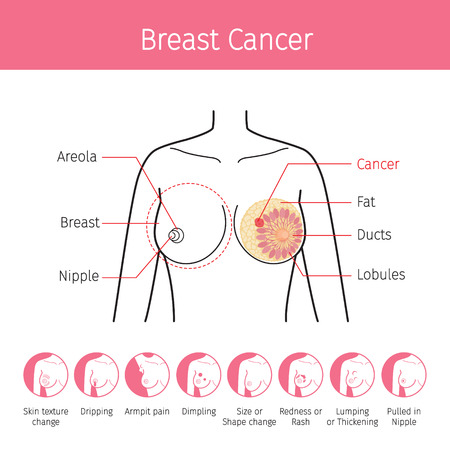 Illustration pour Illustration Of Female Human Breast, Outline And Breast Cancer Symptom Icons, Mammary, Boob, Body, Organs, Physical, Sickness, Health - image libre de droit