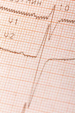 Foto de Electrocardiogram - Imagen libre de derechos