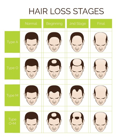 Illustration for Information chart of hair loss stages and types of baldness illustrated on a male head. - Royalty Free Image