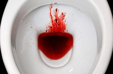 Photo for A white ceramic toilet bowl is stained with blood. The consequences of pronounced menstruation, dysbacteriosis, dysentery, haemorrhoids, cancer and other diseases with similar symptoms - Royalty Free Image