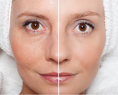 Foto de Beauty concept - skin care, anti-aging procedures, rejuvenation, lifting, tightening of facial skin - Imagen libre de derechos