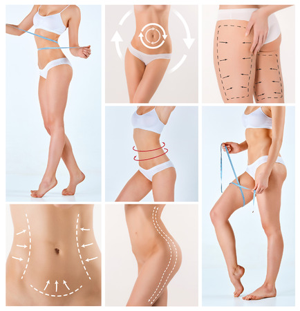 Photo pour Collage of female body with the drawing arrows. Fat lose, liposuction and cellulite removal concept. - image libre de droit