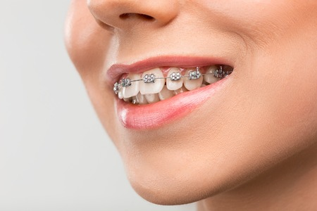 Photo for Beautiful young woman with teeth braces - Royalty Free Image