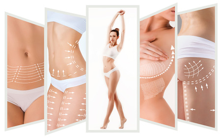 Photo pour The cellulite removal plan. White markings on young woman body - image libre de droit