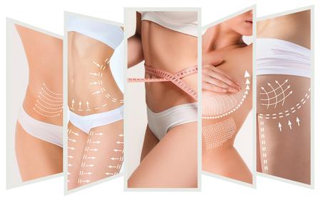 Foto de The cellulite removal plan. White markings on young woman body - Imagen libre de derechos