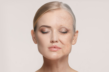 Photo for Comparison. Portrait of beautiful woman with problem and clean skin, aging and youth concept, beauty treatment - Royalty Free Image
