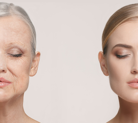 Foto de Comparison. Portrait of beautiful woman with problem and clean skin, aging and youth concept, beauty treatment - Imagen libre de derechos