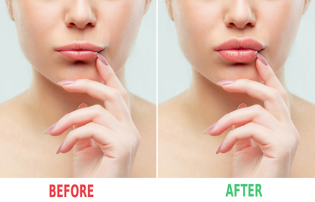 Photo pour Before and after lips filler injections. Beauty plastic. Beautiful perfect lips with natural makeup. - image libre de droit