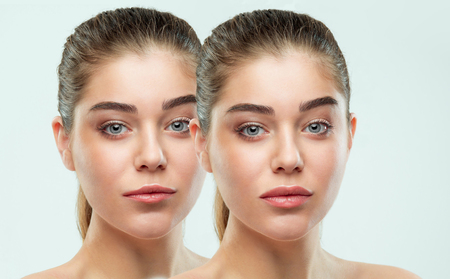 Photo for Before and after lips filler injections. Beauty plastic. Beautiful perfect lips with natural makeup. - Royalty Free Image