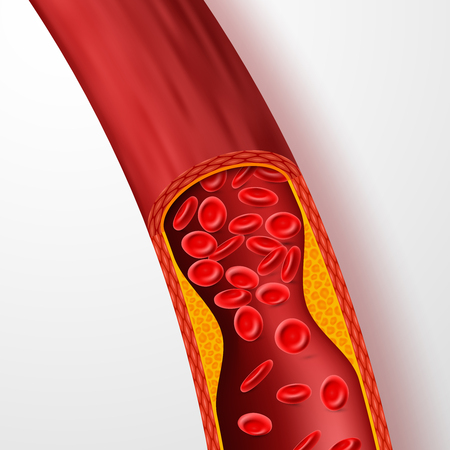 Illustration pour Blocked blood vessel, artery with cholesterol thrombus. 3d vein with clot vector illustration. Medical artery blood, cholesterol disease, blocked flow circulation - image libre de droit