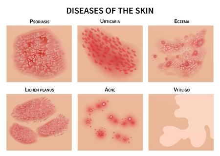 Ilustración de Skin diseases. Derma infection, eczema and psoriasis. Dermatology vector illustration - Imagen libre de derechos