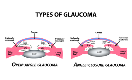 Illustration for Types of glaucoma. Open-angle and angle-closure glaucoma. The anatomical structure of the eye. Infographics. Vector illustration on isolated background - Royalty Free Image