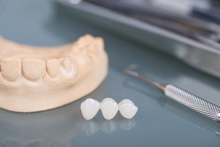 Foto de Dental gypsum models in dental laboratory - Imagen libre de derechos