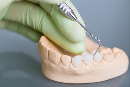 Foto de Hand of dentist holding dental gypsum models - Imagen libre de derechos