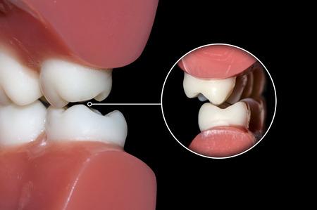 Foto de dental occlusion - Imagen libre de derechos