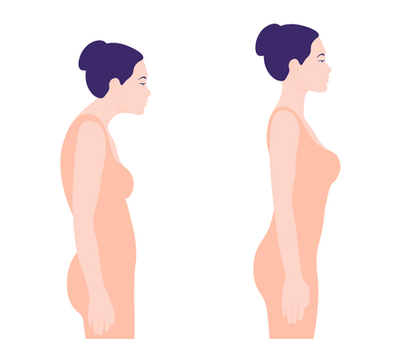 Illustrazione per Young woman with a wrong posture. Rachiocampsis. Profile. Vector illustration on white background. Minimalism - Immagini Royalty Free