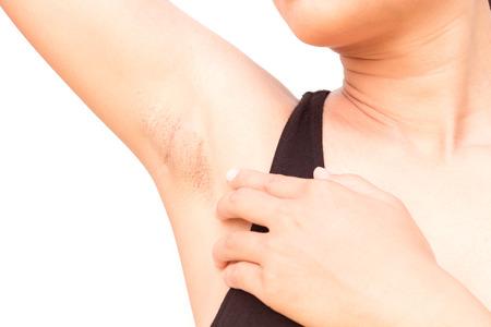 Foto de Women problem black armpit on white background for skin care and beauty concept - Imagen libre de derechos