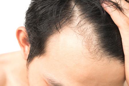 Foto de Young man serious hair loss problem for hair loss concept - Imagen libre de derechos