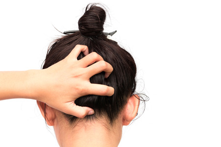 Photo for Closeup woman hand itchy scalp, Hair care concept - Royalty Free Image