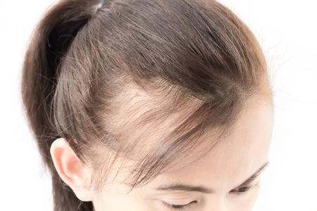 Foto de Woman serious hair loss problem for health care shampoo and beauty product concept - Imagen libre de derechos