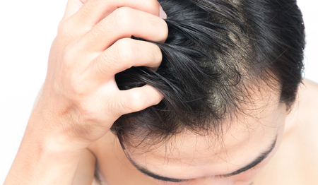 Photo for Closeup man hand itchy scalp, Hair care concept - Royalty Free Image