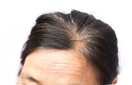 Photo pour Closeup wrinkles on forehead and grey hair old woman, health care and medical concept - image libre de droit