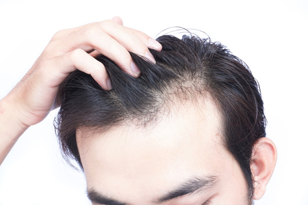 Photo for Young man serious hair loss problem for health care medical and shampoo product concept - Royalty Free Image