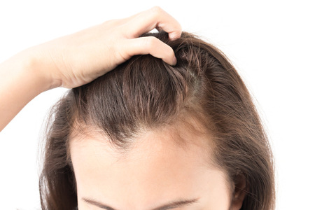 Photo pour Woman serious hair loss problem for health care shampoo and beauty product concept - image libre de droit
