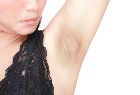 Photo pour Women problem black armpit on white background for skin care and beauty concept - image libre de droit