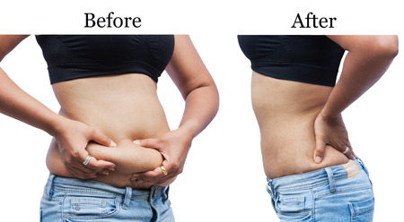 Foto de women body fat belly between before and after weight loss - Imagen libre de derechos