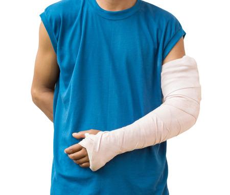 Foto de Men with his broken arm. Isolated on white background - Imagen libre de derechos