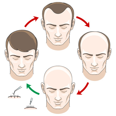 Illustration for Stages of hair loss, hair treatment and hair transplantation. Hair loss, bald and care, health haor, human hair growth, vector illustration - Royalty Free Image