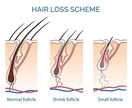 Illustration for Hair loss scheme. Loss hair, growth hair problem, health hair. Vector illustration - Royalty Free Image