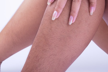 Foto de Hairy legs of Women long and very ugly. - Imagen libre de derechos