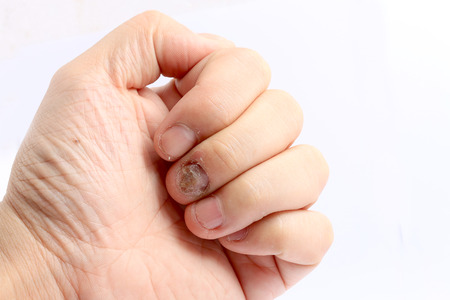 Photo pour Fungus Infection on Nails Hand, Finger with onychomycosis, Fungal infection on nails handisolated on white background. - image libre de droit