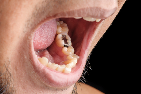Foto de Dental Filling   Tooth Filling   Cavity Filling   Silver Filling - Imagen libre de derechos
