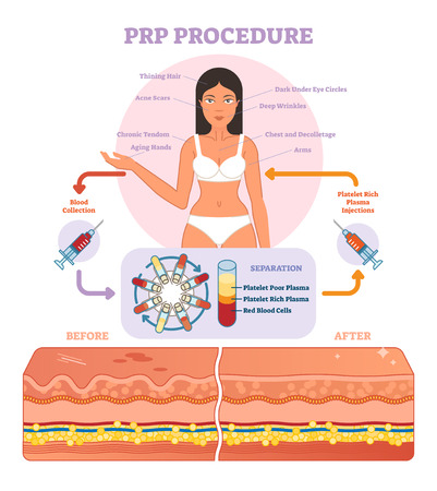 Illustration pour PRP Procedure vector illustration graphic diagram, cosmetology procedure scheme. Women beauty and skincare. - image libre de droit