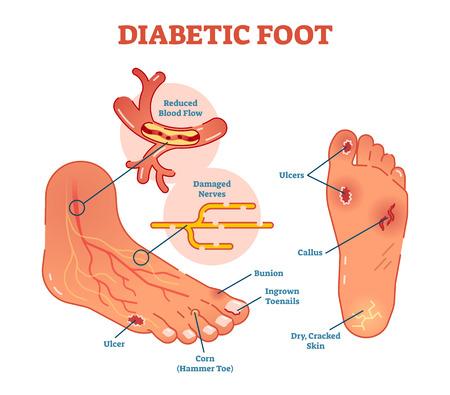 Ilustración de Diabetic foot medical vector illustration scheme with common foot conditions. - Imagen libre de derechos